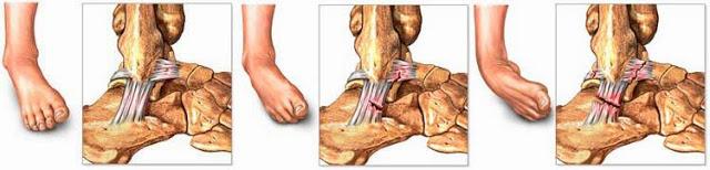como curar un esguince en el tobillo